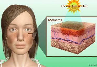 melasma skin lightening topical