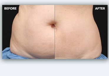 fat reduction non surgical